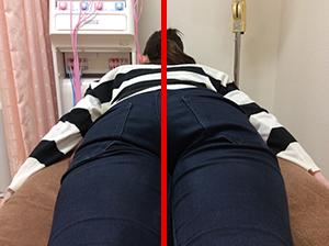 産後骨盤矯正のビフォア・アフター5