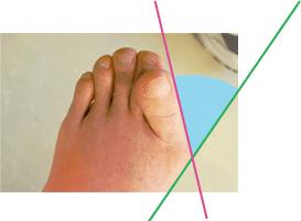 外反母趾の角度